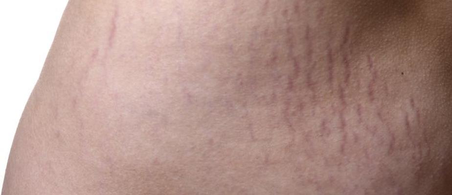 ترک های پوستی